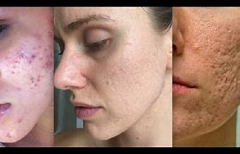 Treat Acne Easily With These Tips