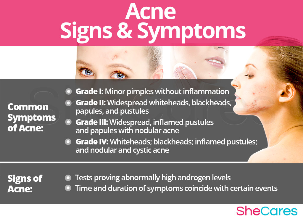 Step by step instructions to Choose The Best Skin Care Products For Your Acne
